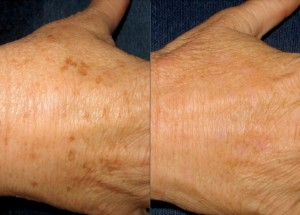 ipl-photofacial-hand-rejuvenation