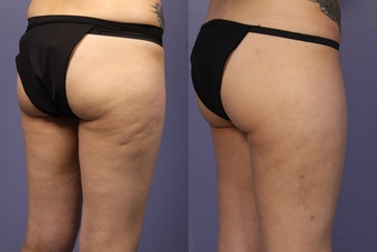 Cellulaze-before-580548-631429