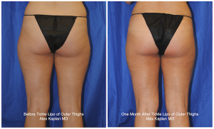Tickle-Lipo-Thighs-Before-and-After-300x182
